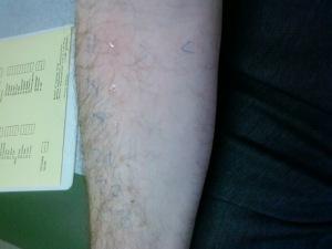 Allergy test passed!